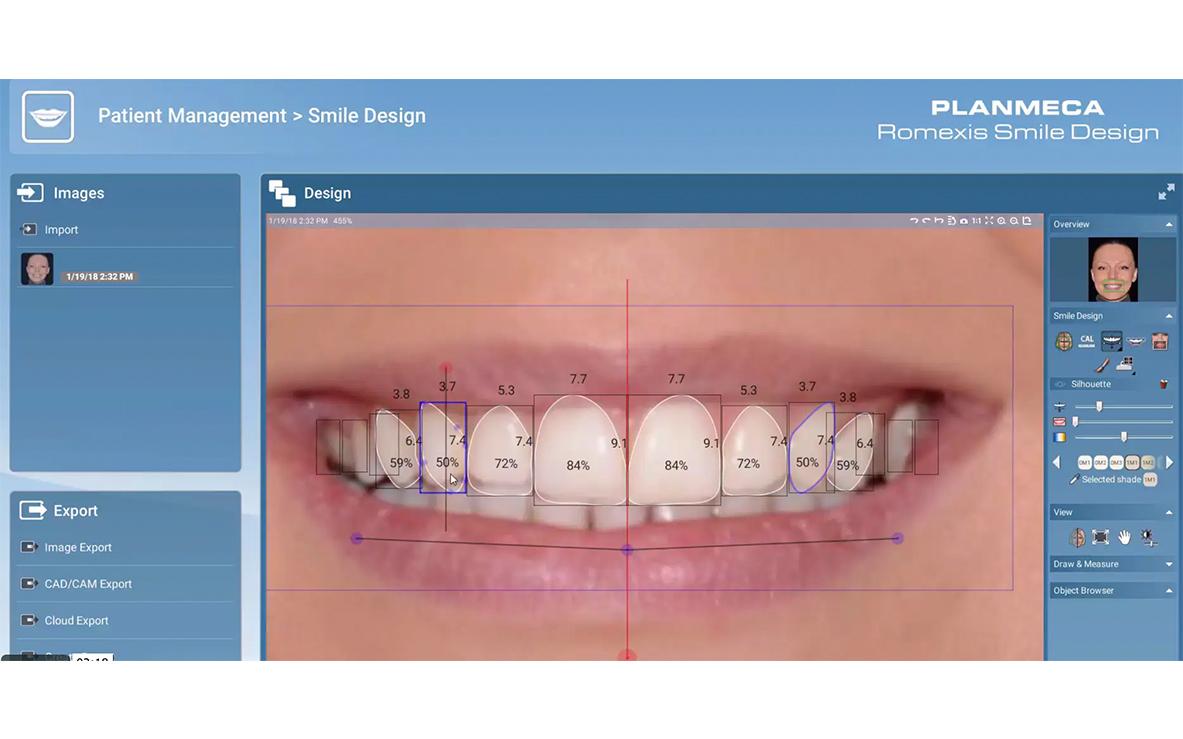 smile-design-arsmedica-02
