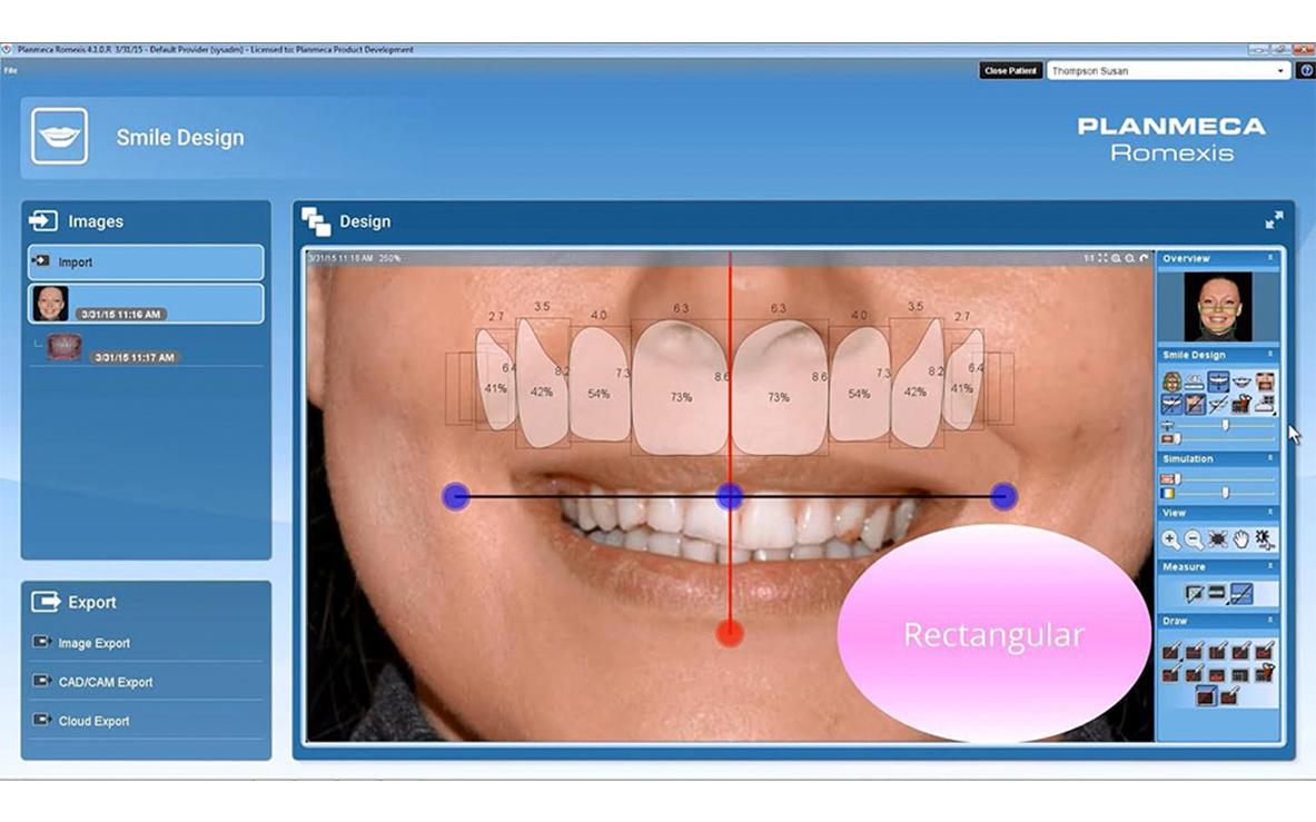 smile-design-arsmedica-03