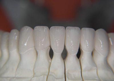 Fiksna protetika